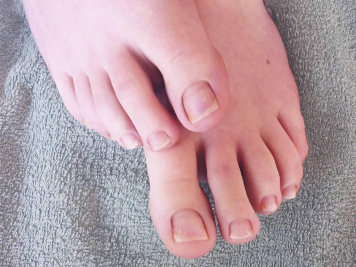 Fußfrench im Vergleich - vorher / nachher