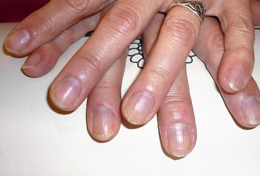 Nagelpflege für Frauen im Vergleich - vorher / nachher