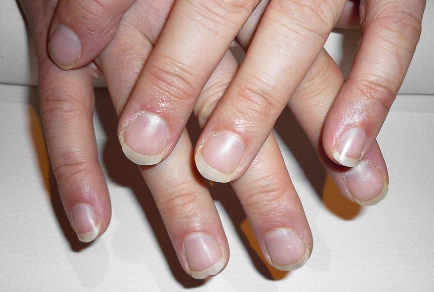 Nagelpflege für Männer im Vergleich - vorher / nachher
